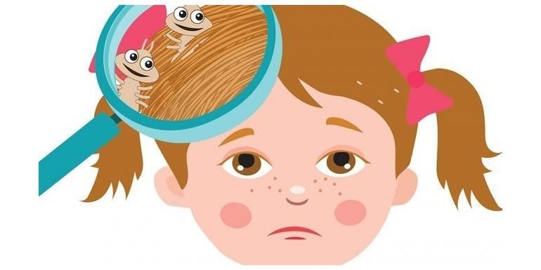 Prevenir y Eliminar Piojos con Aromaterapia